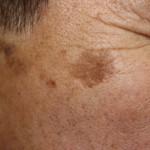 シミ取りレーザー治療とは?値段と効果、痛みはどれくらい?