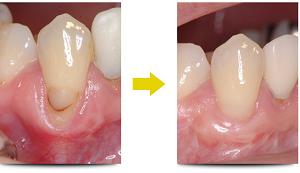 A 歯茎が下がる三つの原因と対策は?治療にかかる費用はどれくらい?_html_4a209a70